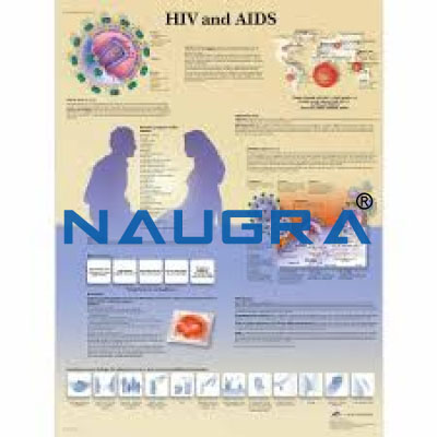 AIDS Chart Size 75x100 Cms for Educational Lab